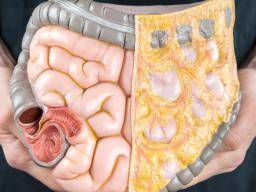Matter Maintains Contact With The Wall Of Large Intestine For Many Hours Sometimes Days If Not Effectively Clearing Your Bowels On