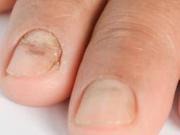 Onycholysis May Cause Pain Is It Nail Psoriasis Or Fungus