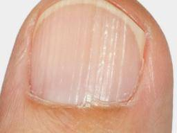 Ridges in fingernails: Types, causes, and treatment