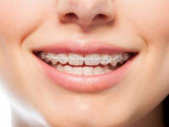 How can orthodontic treatment help?