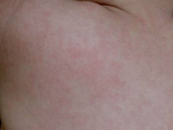 Rash After Fever In Toddlers Causes And When To See A Doctor