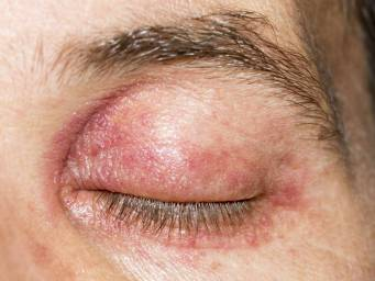 Home Remedy For Shingles In The Eye