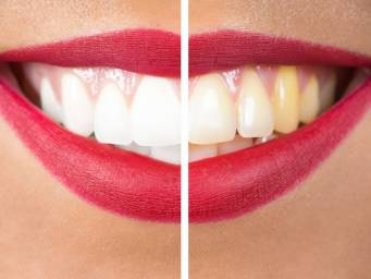 How To Remove Plaque And Tartar Best Home Treatments