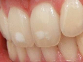 How To Whiten Your Teeth Naturally 6 Home Remedies