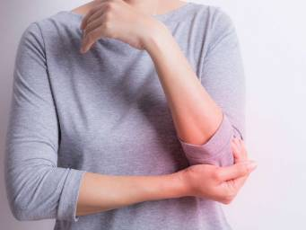 What is the link between lupus and arthritis?
