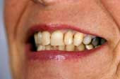 Surname originates Oral cancer teeth interracial orgy