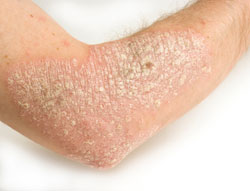 What Are Ways to Manage Symptoms and Treat Psoriasis ...
