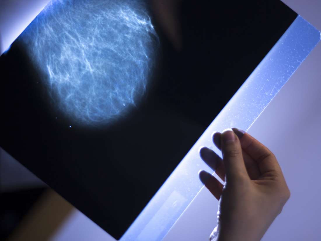 How Fast Can Breast Cancer Spread In 1 Year