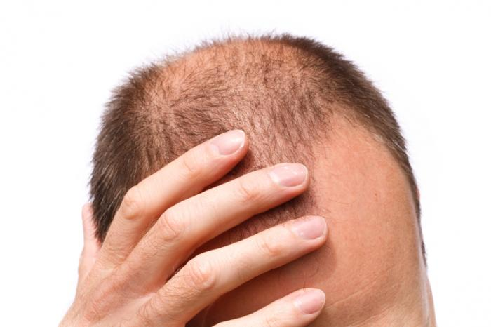 Man with balding hair