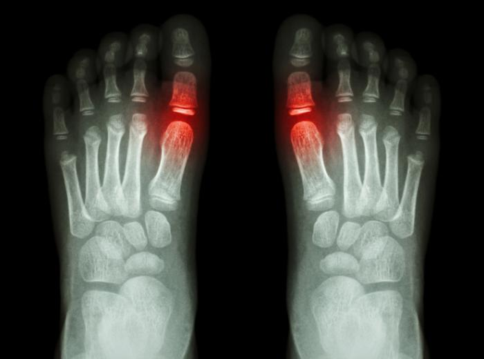 Gout Causes Symptoms And Treatment Medical News Today