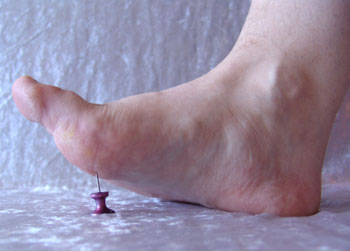 hereditary peripheral neuropathy