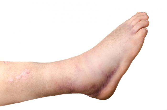 What causes swelling in your toes cifra