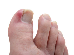 An ingrown toenail