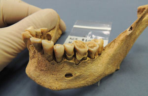 A set of ancient teeth