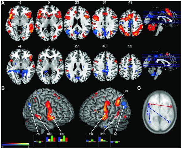 scans of musicians' brains