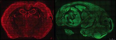 Mouse Embryo and Brain