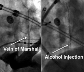 Alcohol Injection at Vein of Marshall