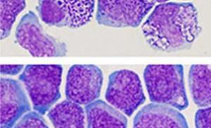 Leukemic Stem Cells