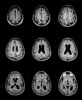 Multiple sclerosis MRI