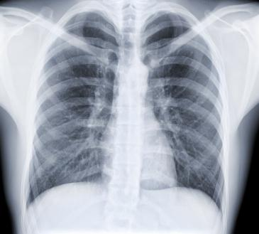 x ray of a pair of lungs