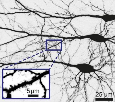 Nerve Cells Form Networks that Can Process Signals