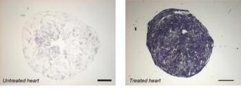Untreated Heart/ Treated Heart