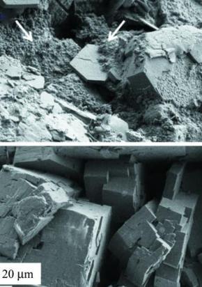 Cystine Kidney Stone
