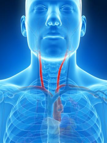 diagram depicting the carotid arteries