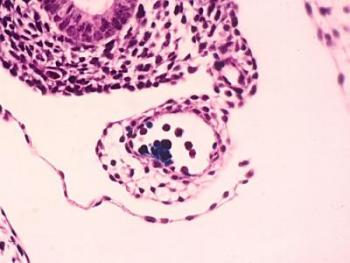 Birth of Hematopoietic (Blood) Stem Cells
