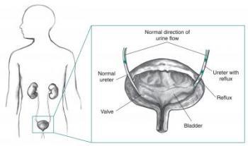 Vesicoureteral Reflux Illustration