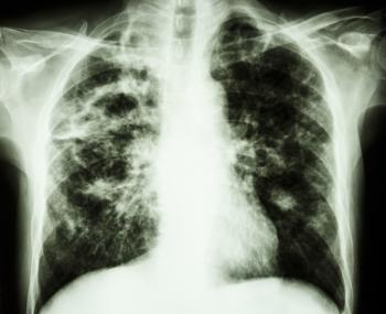 x ray of pulmonary fibrosis