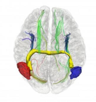 3D Image of Aberrant Interhemispheric Bundles in the Human Brain