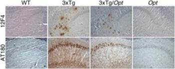 Amyloid-beta and Tau in Mouse Hippocamopus