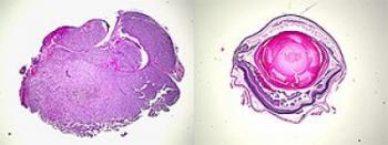 Il melanoma uveale