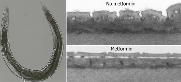 Roundworm model for metformin