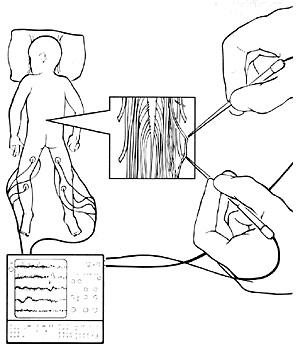 SDR procedure