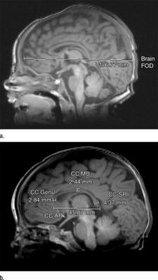 Brain Fronto-Occipital Distance