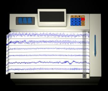 electroencephalography machine