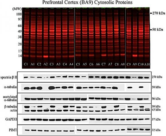 Protein Profiles of the Prefrontal Cortex