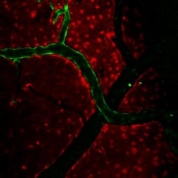 In-Vivo 2-Photon Microscopy Image of Endothelial Cells Lining Surface Arteries in the Brain