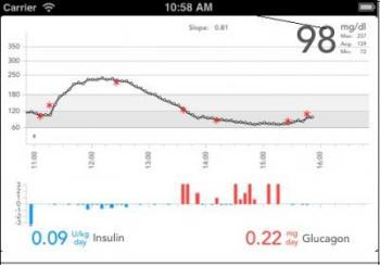 Bionic pancreas readings