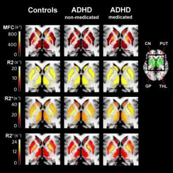ADHD brain imaging