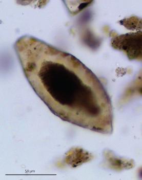 schistosomiasis egg