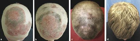 patient baldness before and after treatment