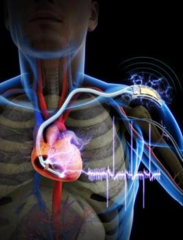 Self-Powered Cardiac Pacemaker