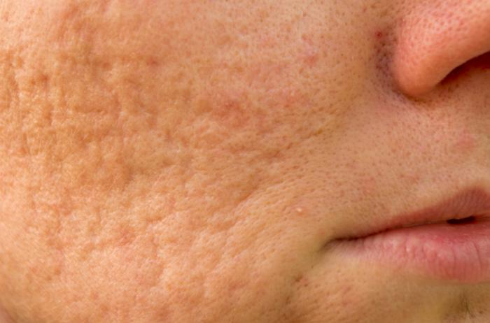 close up of acne scarring