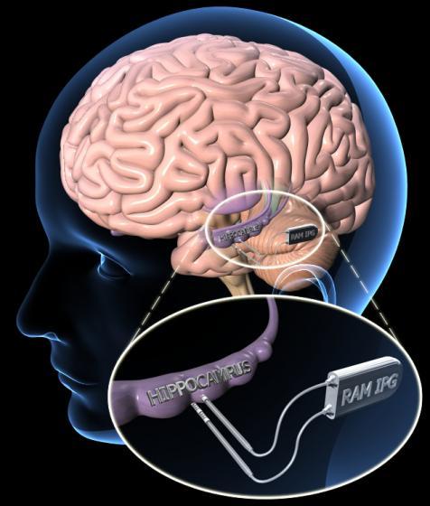 neuromodulation device