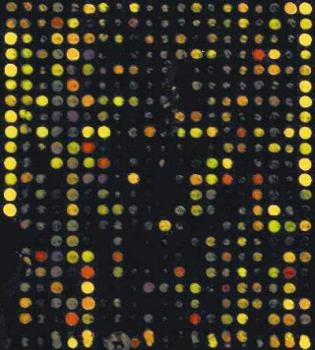 Parkinsons gene chip