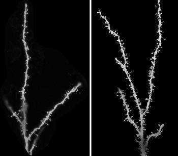 autism synapses