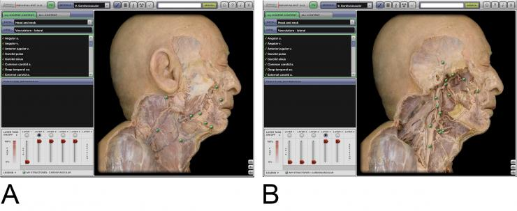 Computer application in medicine